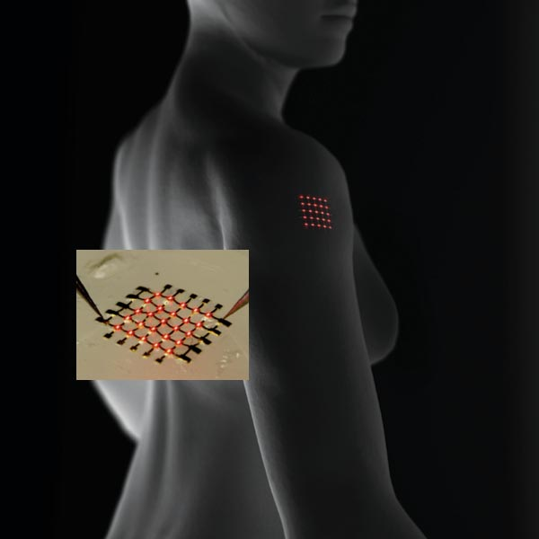 Implanted under the skin, an array of light-emitting diodes could signal the concentration in the blood of biomarkers such as insulin. Over time, the array will dissolve away, eliminating the need for surgery to remove the implant. Flexible silicon electronics (inset) are held in place with a silk film. Incorporating antibodies or enzymes into the film will allow devices to detect biomarkers.