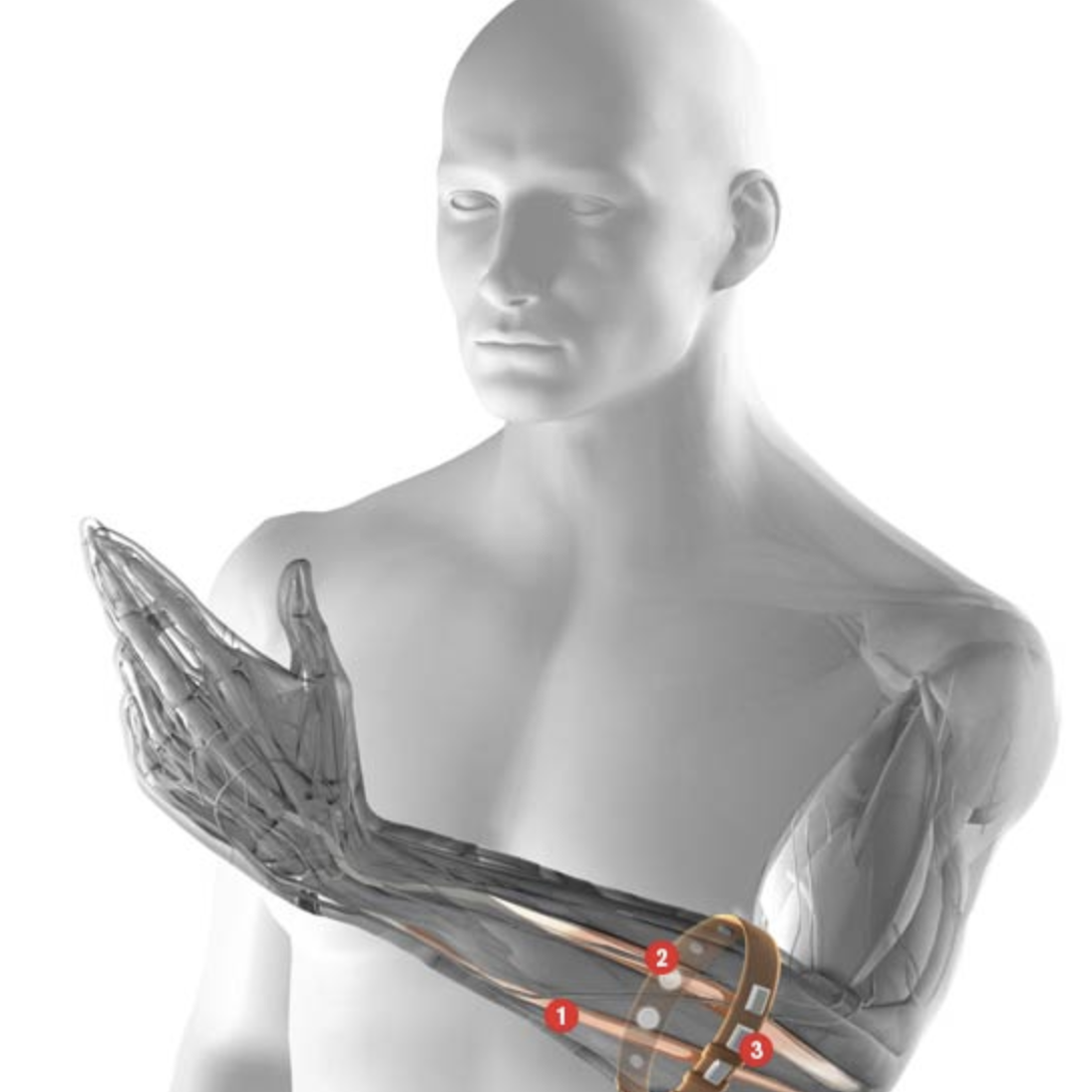 Hands free: This armband can translate the complex muscle activity involved in  gestures into signals that control electronic devices. (1) Muscles involved in a gesture produce electrical activity. (2)  A ring of electrodes detects the activity. (3) Signals are sent to a computer wirelessly.