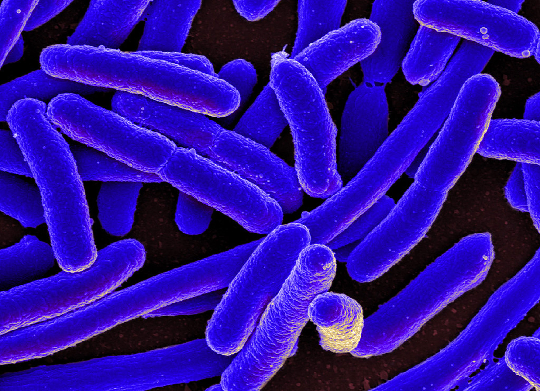 Micrograph of E. coli