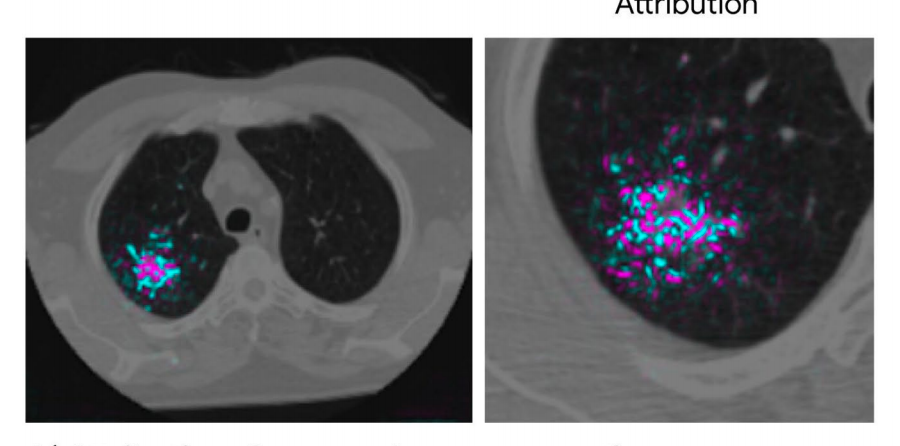 A visualization shows a lung CT scan with signs of cancer (highlighted).