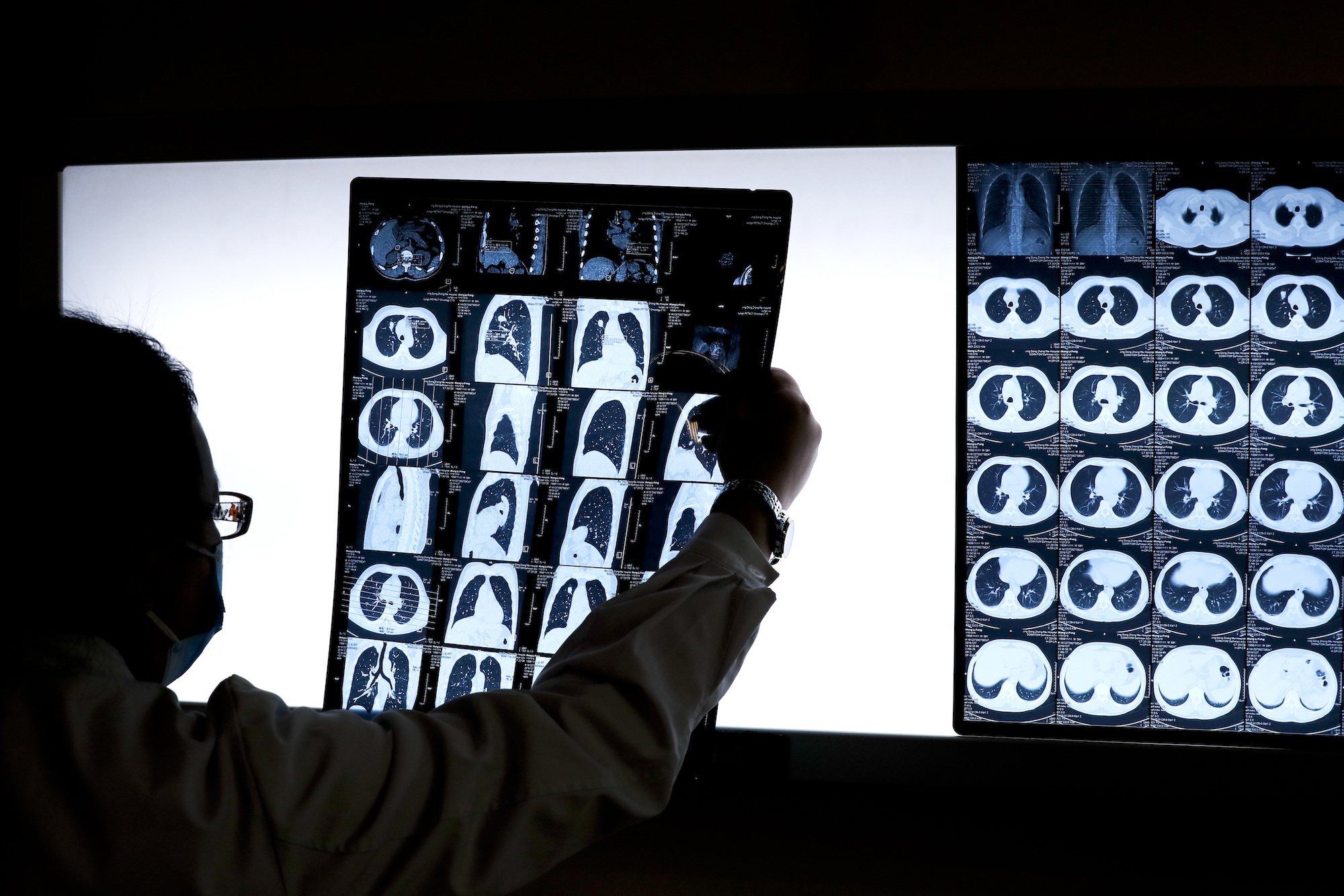 An image of a doctor looking at medical scans.