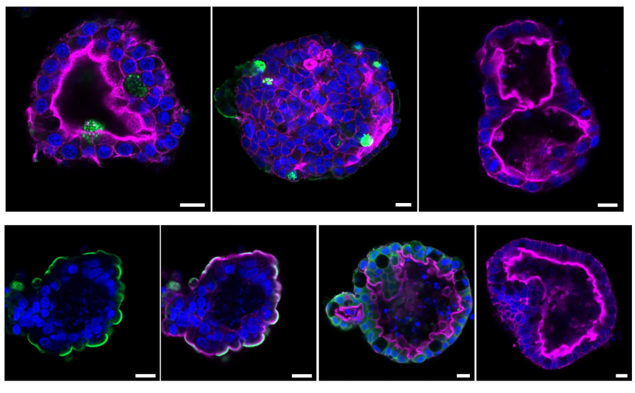 Lab-grown mini-lungs might expose why covid-19 eliminates