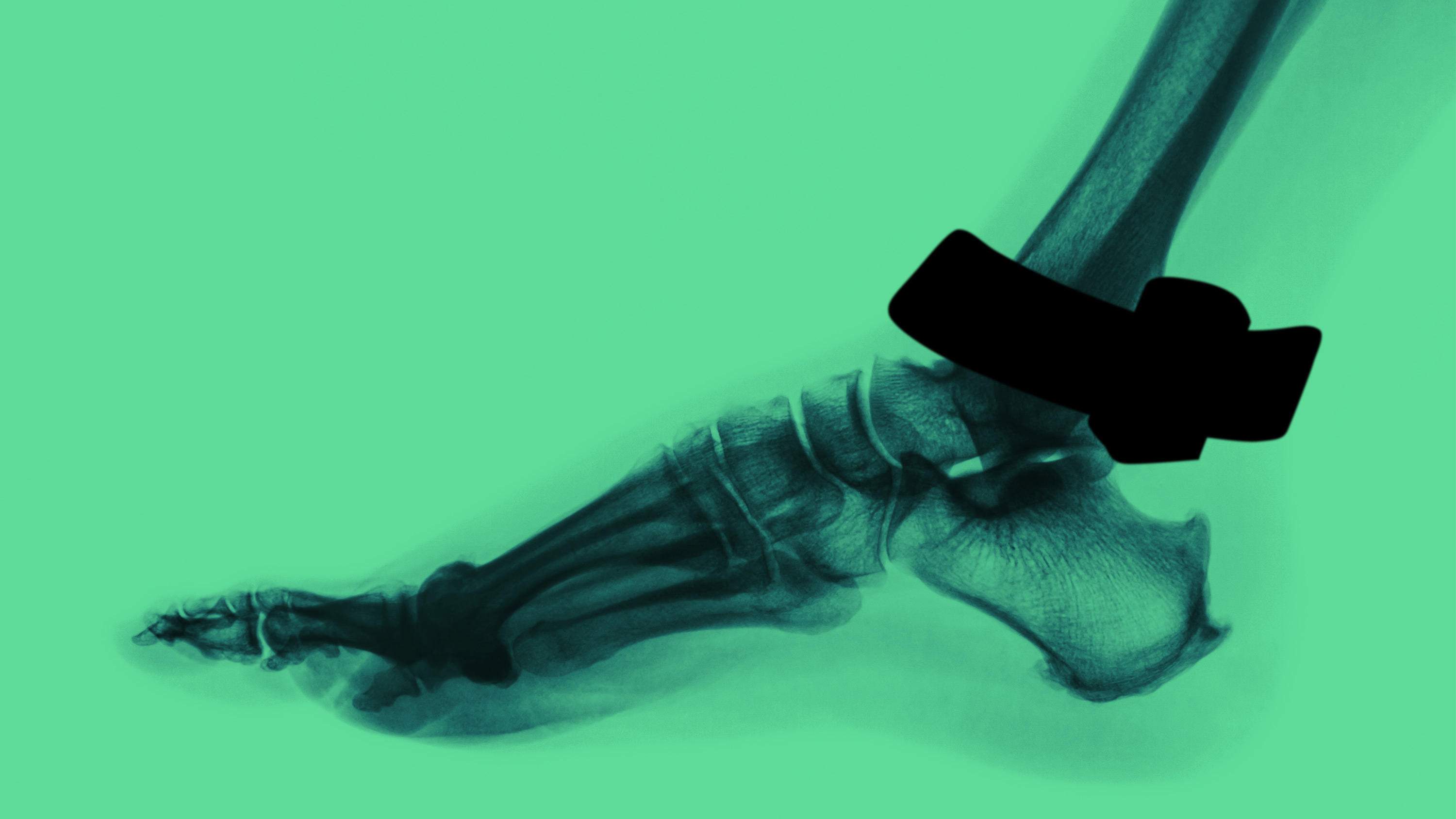 x-ray view of ankle with ankle monitor