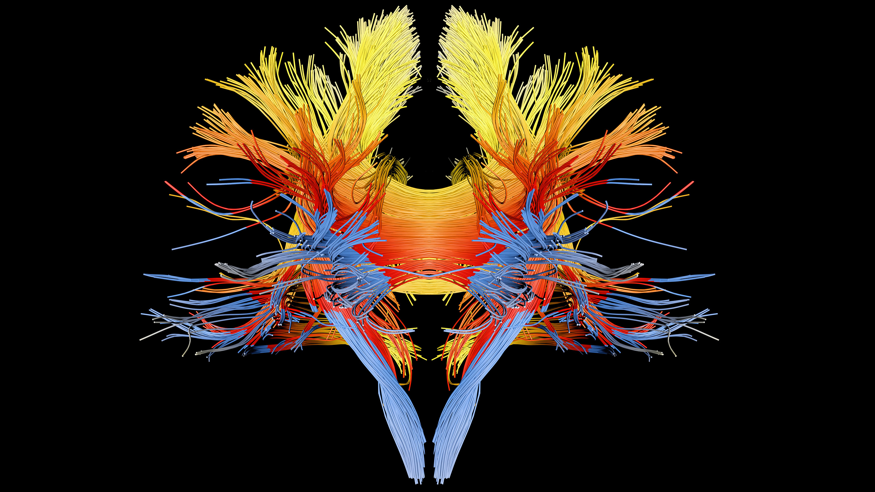 Computer enhanced 3D diffusion spectral imaging (DSI) scan of the bundles of white matter nerve fibres in the brain.