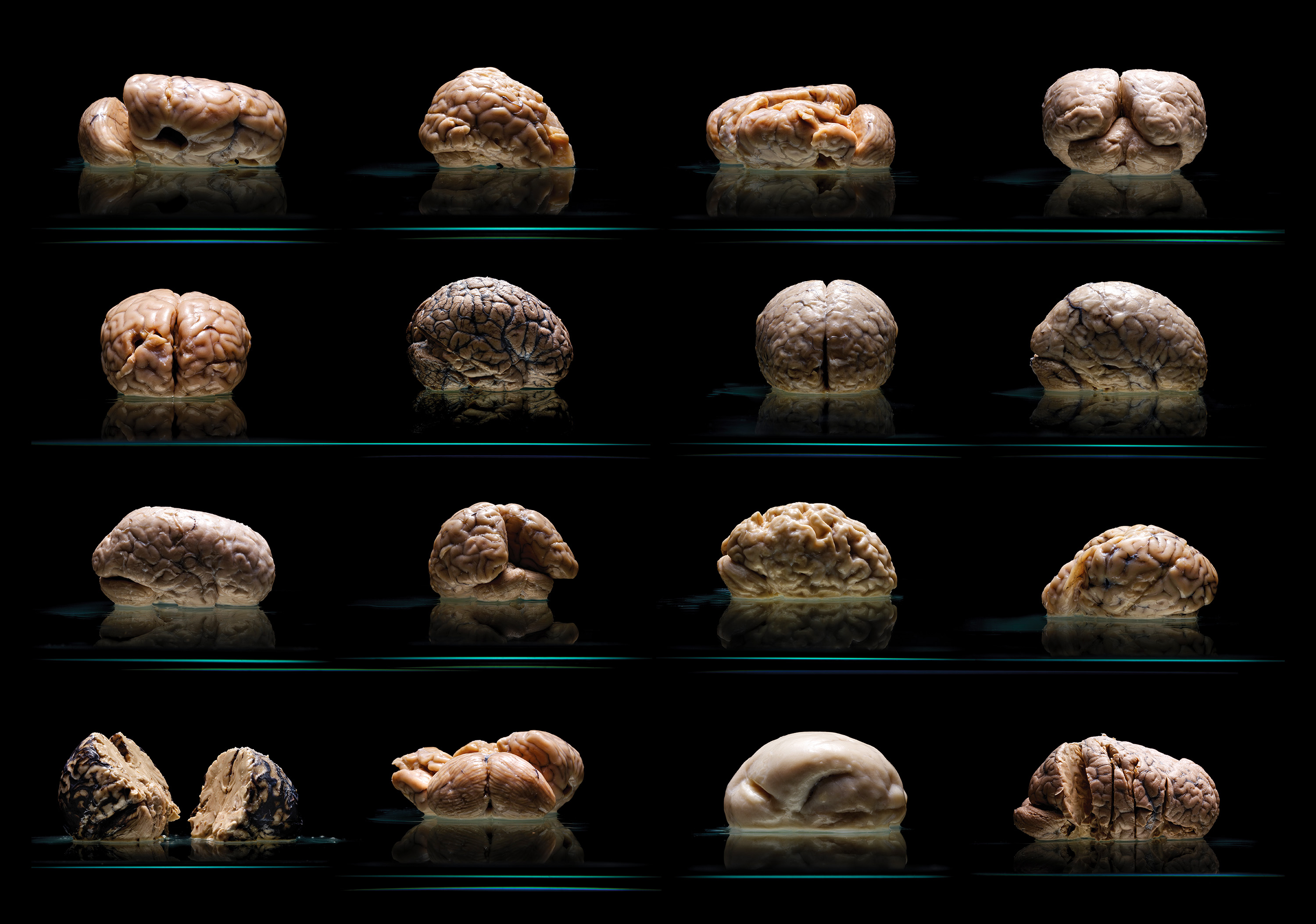 collection of human brains